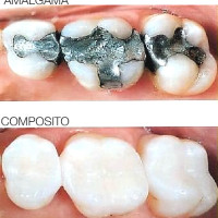 amalgama_composito