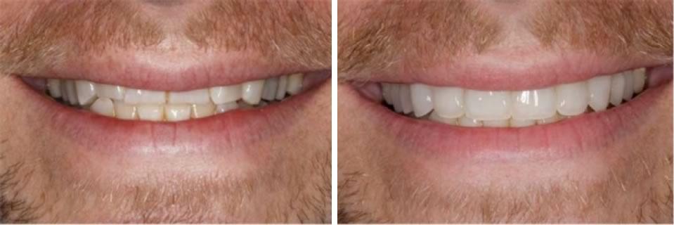 faccette_denti