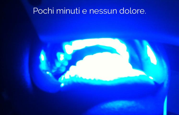 sbiancamento-denti-laser